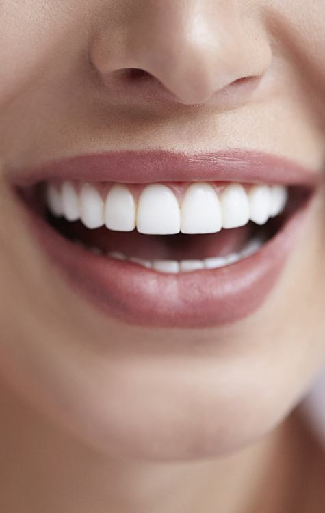 Female patient with flawless bright white smile