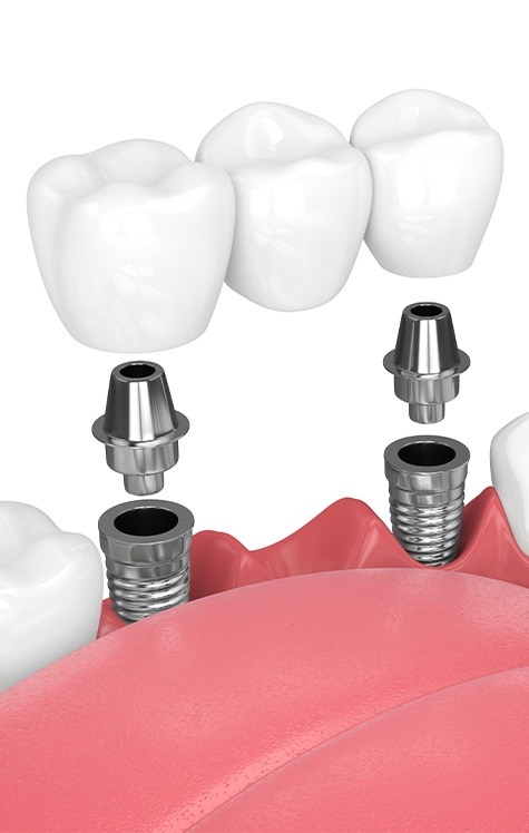 Dentist showing patient implant retained bridge model