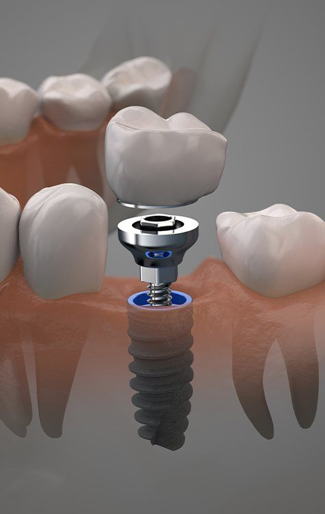 Frisco Dental Implants woman with flawless smile