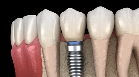 Dental implants and teeth