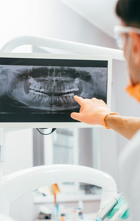 Computer screen displaying a dental x-ray